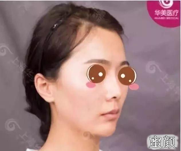 https://img.miyanlife.com/mnt/timg/210220/103J34494-1.jpg 我在上海华美找李健做鼻综合+ARC全面部脂肪塑形案例分享 知识库 第2张