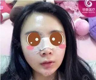 https://img.miyanlife.com/mnt/timg/210220/103J34T6-2.jpg 我在上海华美找李健做鼻综合+ARC全面部脂肪塑形案例分享 知识库 第3张