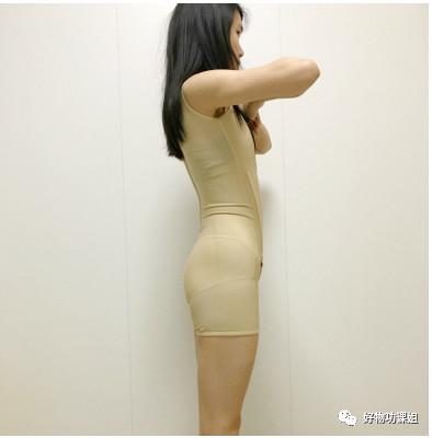 https://img.miyanlife.com/mnt/timg/210221/2040556460-1.jpg 四川妹子在整形医院做腰部腹部吸脂术后分享 知识库 第2张