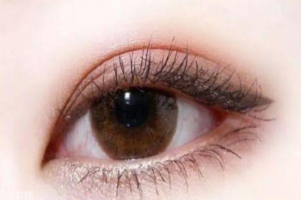 肿泡眼适合做什么双眼皮 肿泡眼适不适合做双眼皮 肿泡眼适合做什么双眼皮 肿泡眼适不适合做双眼皮 知识库 第1张
