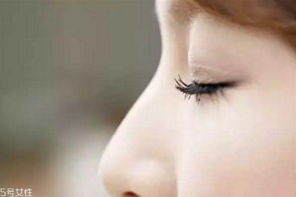 肿泡眼适合做什么双眼皮 肿泡眼适不适合做双眼皮 肿泡眼适合做什么双眼皮 肿泡眼适不适合做双眼皮 知识库 第3张