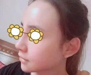 https://img.miyanlife.com/mnt/timg/210219/1A9594249-2.jpg 讲述我在沈阳伊美尔做自体耳软骨+假体隆鼻术后一个月效果 知识库 第4张
