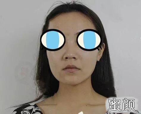 https://img.miyanlife.com/mnt/timg/210220/0036355N7-1.jpg 太原军大整形王海龙做的膨体隆鼻和自体耳软骨垫鼻尖鼻综合案例 知识库 第2张