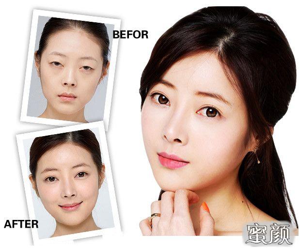 https://img.miyanlife.com/mnt/Editor/2021-02-19/602f4cc0298a7.jpg 为何大家会选择韩式双眼皮? 知识库 第2张