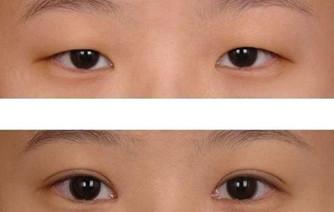 https://img.miyanlife.com/mnt/Editor/2021-02-19/602f484400b94.jpg 为何大家会选择韩式双眼皮? 知识库 第4张