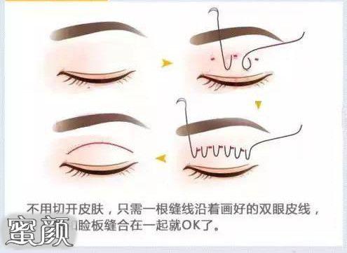 https://img.miyanlife.com/mnt/Editor/2021-02-19/602f4837726b2.jpg 为何大家会选择韩式双眼皮? 知识库 第3张