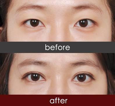 https://img.miyanlife.com/mnt/Editor/2021-02-19/602f486c9d1e6.jpg 为何大家会选择韩式双眼皮? 知识库 第6张