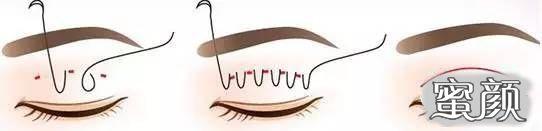 https://img.miyanlife.com/mnt/timg/210219/122S56001-1.jpg 埋线双眼皮绝对安全?眼部医生解答 知识库 第2张