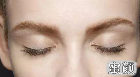 https://img.miyanlife.com/mnt/timg/210219/104T41227-16.jpg 谁说只有埋线双眼皮最自然?这个妹子割的双眼皮连医生都看不出来! 知识库 第16张