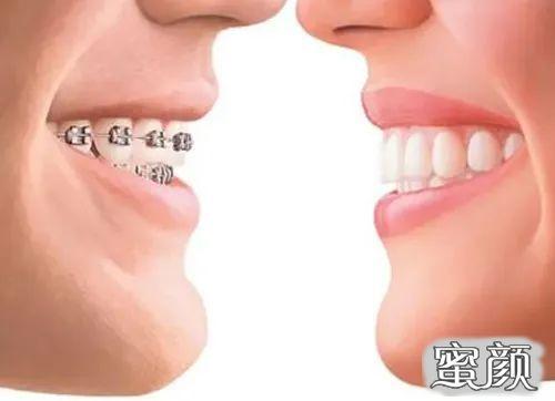 https://img.miyanlife.com/mnt/timg/210220/1646155030-1.jpg 这个寒假 正是牙齿矫正好时节 知识库 第3张