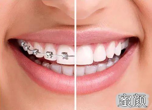 https://img.miyanlife.com/mnt/timg/210220/164615GL-2.jpg 这个寒假 正是牙齿矫正好时节 知识库 第4张