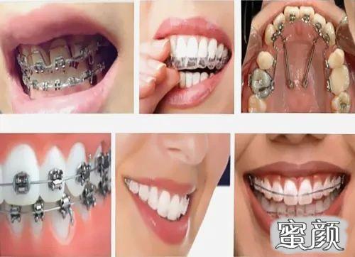 https://img.miyanlife.com/mnt/timg/210220/16461B020-3.jpg 这个寒假 正是牙齿矫正好时节 知识库 第5张
