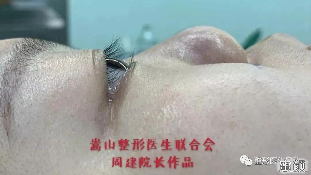 https://img.miyanlife.com/mnt/timg/210220/1920191145-6.jpg 鼻整形手术过程详解:为什么鼻整形手术需慎重?丨科普篇 知识库 第5张