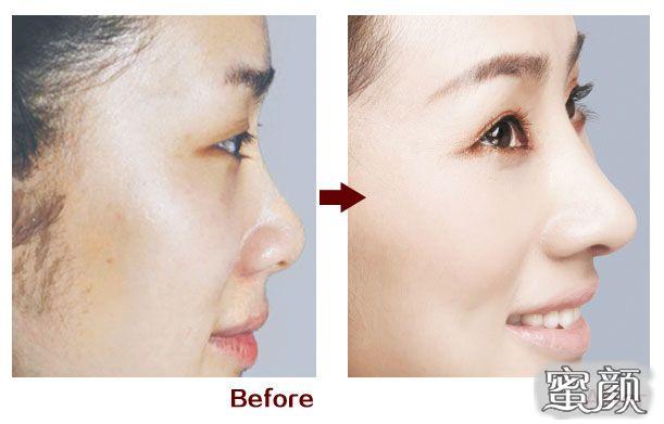 https://img.miyanlife.com/mnt/Editor/2021-02-20/6030f03846343.jpg 鼻整形手术过程详解:为什么鼻整形手术需慎重?丨科普篇 知识库 第9张