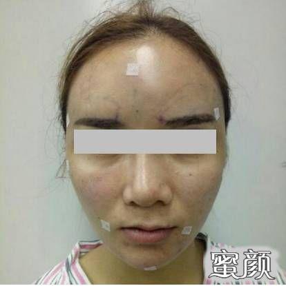 https://img.miyanlife.com/mnt/timg/210220/2030231S7-3.jpg 都是自体脂肪脸部填充,为什么有人像仙,有人像鬼? 知识库 第5张