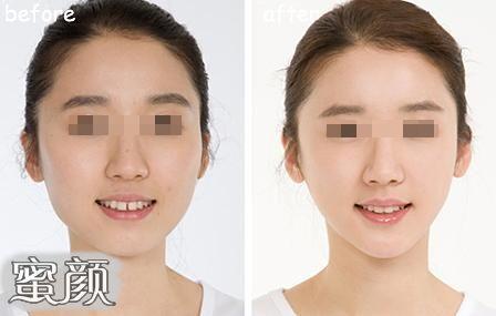 https://img.miyanlife.com/mnt/Editor/2020-09-11/5f5b166f6b763.jpg 玻尿酸隆下巴让你拥有更加立体的脸型 知识库 第3张