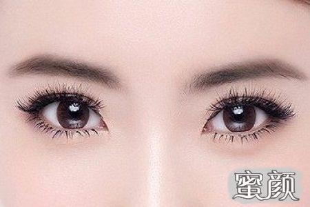 https://img.miyanlife.com/mnt/Editor/2020-09-10/5f59ba82ca432.jpg 韩式双眼皮好不好?杜大夫整形医院来了解! 知识库 第4张