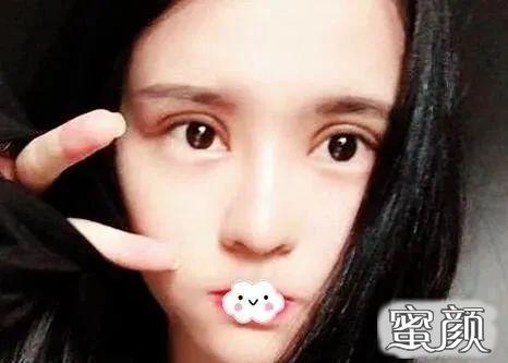 https://img.miyanlife.com/mnt/timg/210403/233PC927-3.jpg 郑州双眼皮修复案例:一个半月就消肿了~ 知识库 第4张