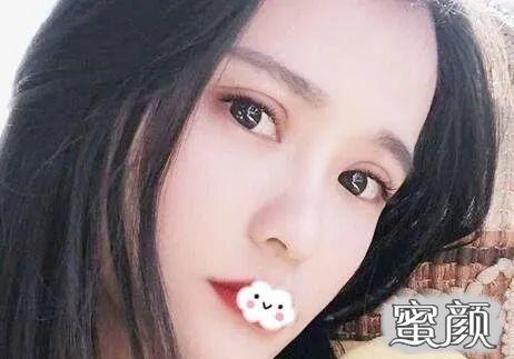 https://img.miyanlife.com/mnt/timg/210403/233PB139-4.jpg 郑州双眼皮修复案例:一个半月就消肿了~ 知识库 第5张